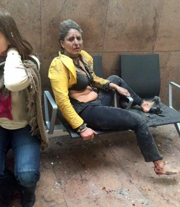 Photograph of injured Jet Airways flight attendant Nidhi Chaphekar quickly became a defining image of the Brussels attack.